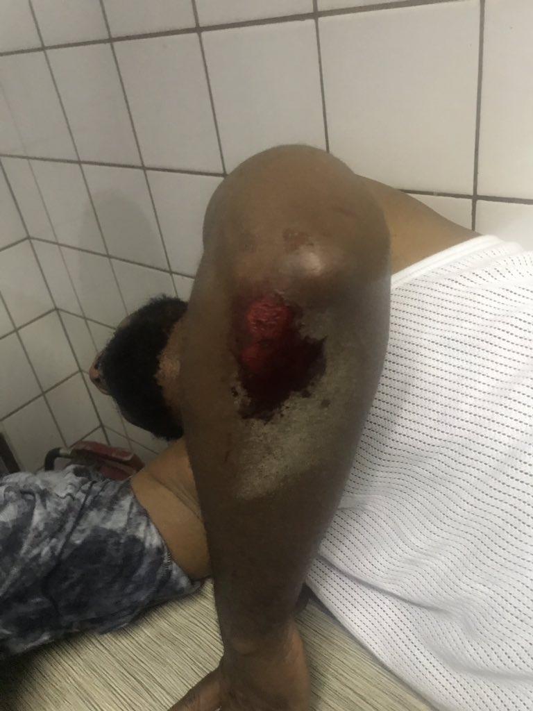 Deji Adeyanju's Health Worsens After Brutal Beating [Photos]
